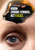 ACT F.A.S.T. is a new national government campaign aimed at helping people to recognise the signs of stroke, and act to save lives and reduce the damage caused.